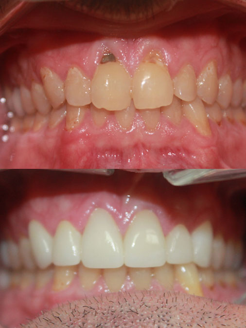 badly damaged teeth and missing tooth before treatment, fully restored and white teeth after treatment